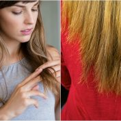 How to Stop Hair Loss and About Hair Loss Treatments